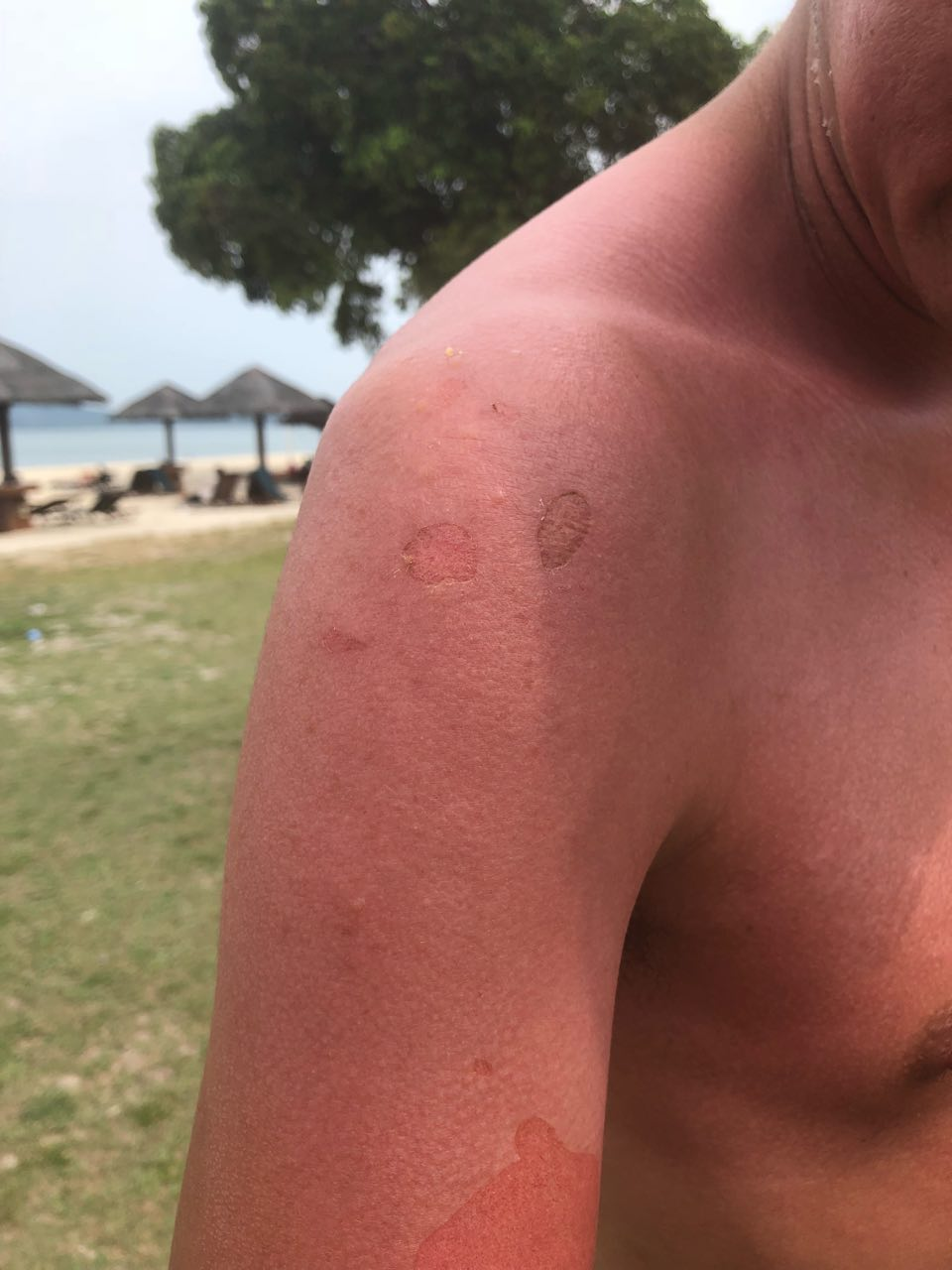 日焼けした肌